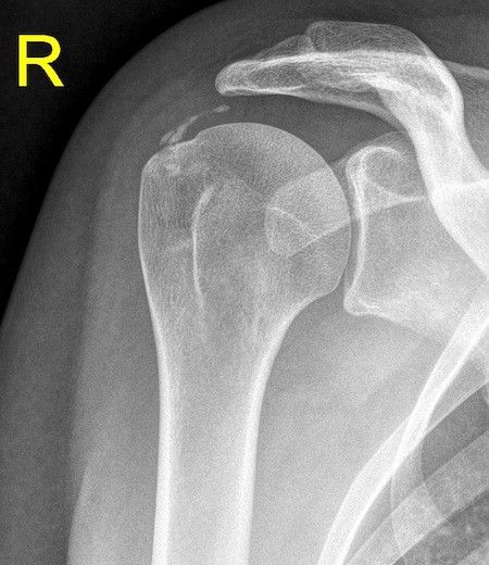 calcification of the Tendinitis calcarea (Shoulder calcification)
