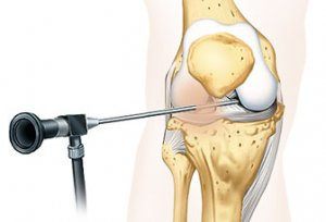 "Gentle ""buttonhole surgery"" of the knee joint"