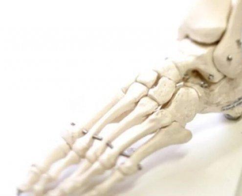 Fusschirurgie Orthopaede 1060 Wien